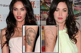 laser tattoo removal affordable tattoo removal cheap tattoo