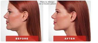 how to make a double chin look less noticable eith hair permanent double chin injections with medical experts cityskin clinic