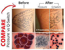 laser removal skinpossible laser light calgary laser clinic