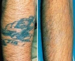 45 besten laser removal tattoo bilder auf pinterest tattoo