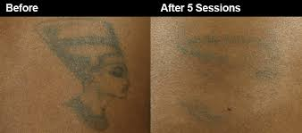 laser tattoo removal safe for dark skin wifh