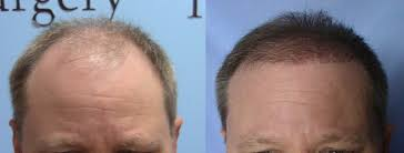 hair transplant month by month pictures 5000 graft fue hair transplant update 6 months carolina hair