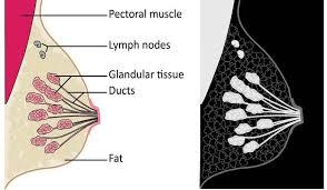 dense breast tissue dense densebreast info