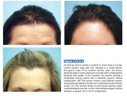 types of hair lines exles of female hairline variations lam sam hairtx com