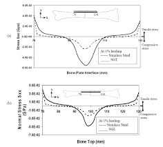biomechanics of bone fracture fixation by stiffness graded plates