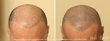 pics of scalp micropigmentation on people with long hair smp scalp micropigmentation and hair transplant with long hair