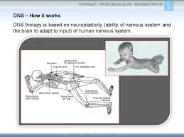 Dns by Dynamic Neuromuscular Stabilization In New York Dns Nyc