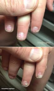 cacoethes cognitum loss of nails following hand foot and mouth