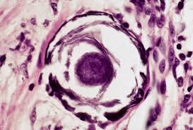 endocrine quiz answers pathology student