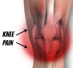 Picture Of Human Knee Muscles Cracking Achy Knee Pain Or Chondromalacia Patella Treatment And
