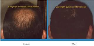 low level light therapy hair hair loss restoration and baldness blue medi spa