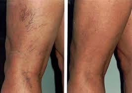 sedere depilato rimuovi definitivamente i capillari in modo veloce e sicuro con la