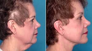 best short haircuts for turkey neck best hairstyle for turkey neck picture of haircuts for turkey