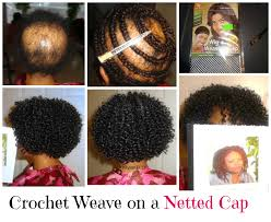 crochet style on balding hair do you have hairloss if so let me help you i can provide you