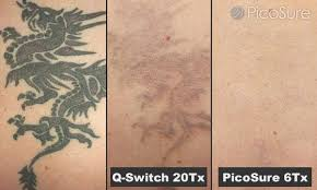 seattle picosure l shoreline laser tattoo removal l kirkland