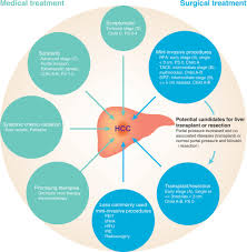 current and future treatment of hepatocellular carcinoma an
