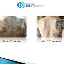 san diego laser tattoo removal 66 photos u0026 53 reviews tattoo