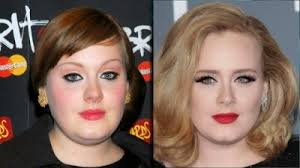 best hair for wide nose adele nose job plastic surgery before and after photos