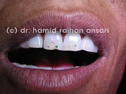 indian desert gypsy with unique tooth tattoo dr hamid raihan