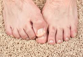 how you can stop foot and toenail fungus in its tracks u2013 health