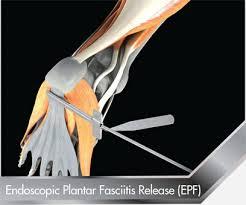 Planters Fasciitis Surgery by Endoscopic Plantar Fasciitis Epf S E G Way Orthopaedics