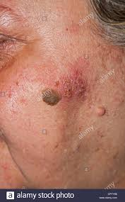 human herpes health stock photos u0026 human herpes health stock