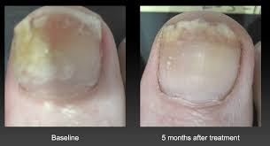 complete guide to toenail fungus treatment u0026 prevention