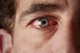 Diseases Of The Eye That Cause Blindness Ocular Sarcoidosis A Disease Causing Blindness Is 7 Times More