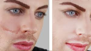 what s a good makeup to cover acne scars makeup vidalondon