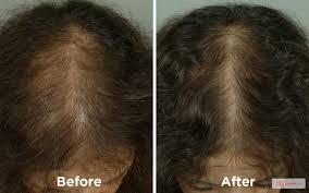 Laser Hair Growth Hat Laser Therapy U2013 West La Hair Restoration