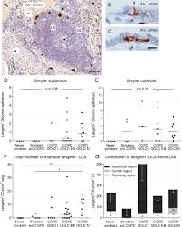 Anatomy And Physiology Of Copd Appearance Of Remodelled And Dendritic Cell Rich Alveolar Lymphoid
