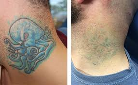 wrecking ball tattoo removal reviews best tattoo 2018