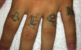 houston tattoo removal clinic houston tx 281 922 4262