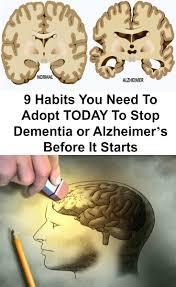 best 25 vascular dementia ideas on pinterest senile dementia