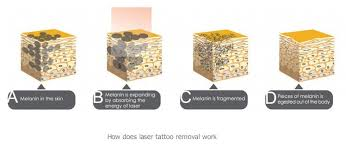 2016 yag laser tattoo removal by portable q switched nd yag