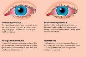 Eyes Are Sensitive To Light Conjunctivitis Or Pinkeye Symptoms And Treatments