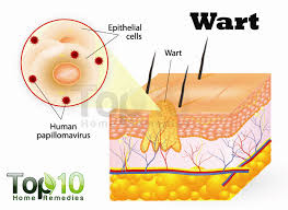 How Do You Get Planters Warts by Home Remedies For Warts Top 10 Home Remedies