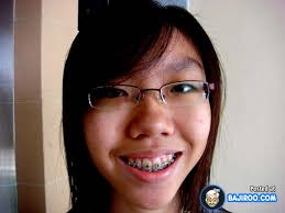 Braces Girl Meme - 27 pictures of people with funny teeth braces bajiroo com