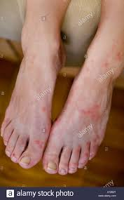 Bed Bugs Disease Feet Bitten By Bed Bugs October 2006 Stock Photo Royalty Free