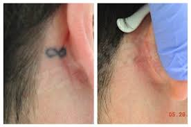 before and after laser tattoo removal treatment photos
