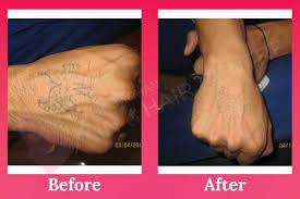 tattoo u0026 birthmark removal best clinic in phagwara punjab india