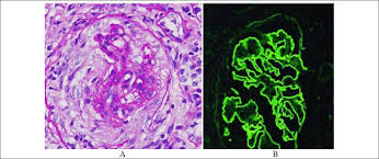 Anti Glomerular Basement Membrane - anca mediated crescentic glomerulonephritis with linear deposition