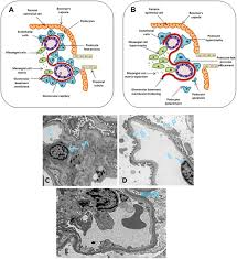 wnt signaling and podocyte dysfunction in diabetic nephropathy jim
