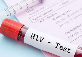 Challenge Hiv Hiv Data Collection A Challenge For Oecs St Lucia Times News