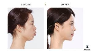 hair styles for protruding chin protruding mouth correction aso anterior segmental osteotomy