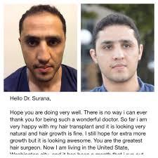 dhi hair transplant reviews dhi saif ali hair transplant dr arihant surana