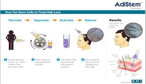 men hair stem cell could cure baldness cost u0026 review bangkok