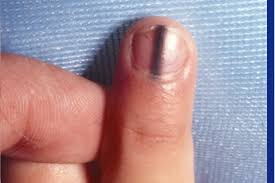 pay attention to these 15 warning signs your fingernails are