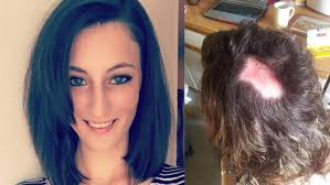 hair styles for solicitors compensation for woman who suffered chemical burns and was left with