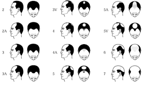 types of hair lines limmer htc male pattern baldness receding hairlines